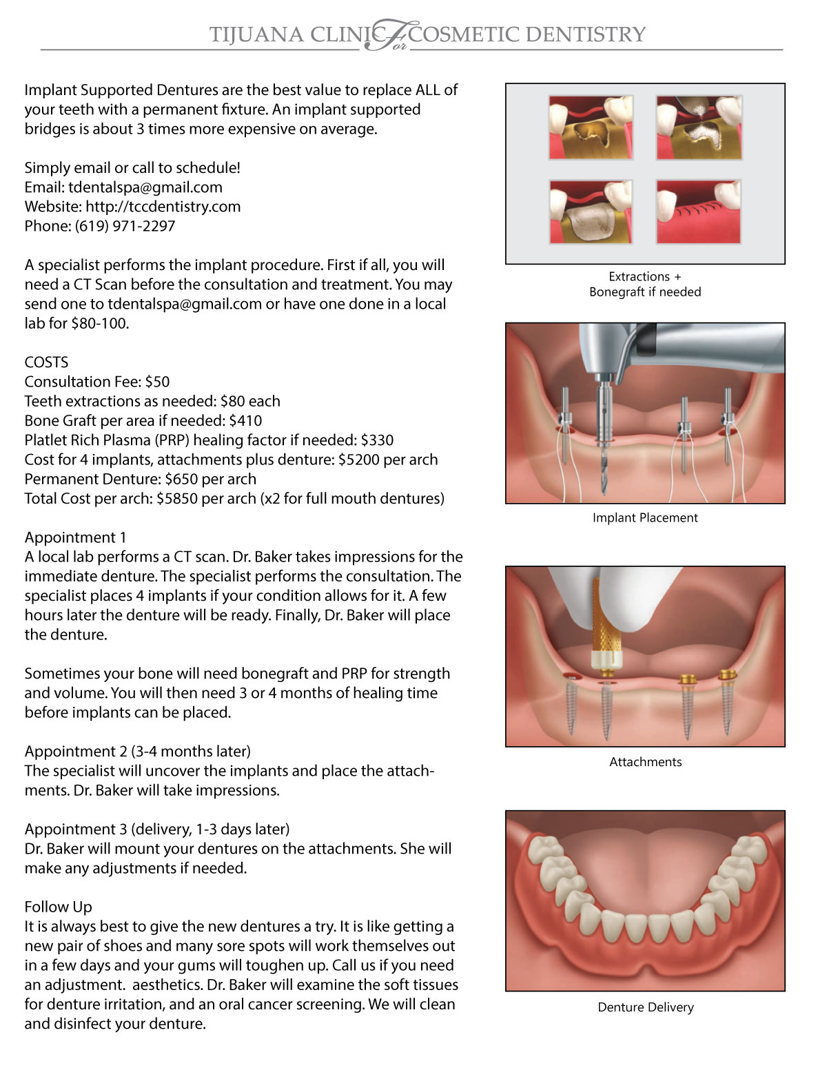 Implant Supported Dentures - Tijuana Clinic for Cosmetic