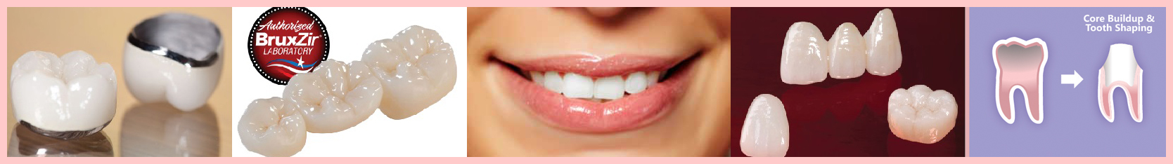 Tijuana Clinic for Cosmetic Dentistry Dental Crowns and Bridges